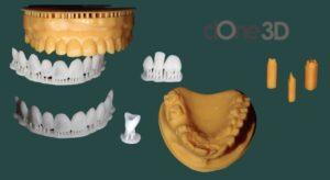 Curso Odontologia 3d - próteses dentarias don 3d