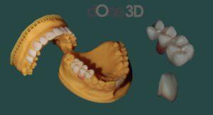 Curso odontologia 3d